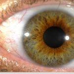 iridology_4