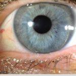 iridology_5
