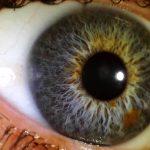 iridology_7