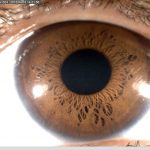 iridology_8